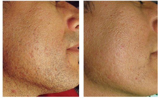 Laser Hair Removal Before And After | laser facial hair